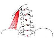 напряжение квадратной мышцы при сколиозе