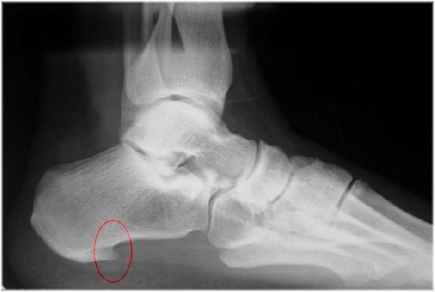рентген здоровой пятки фото